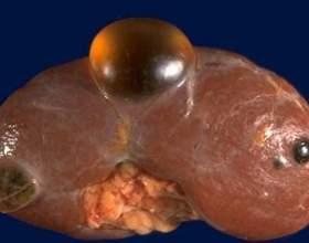 Кіста нирки: лікування, діагностика і причини фото