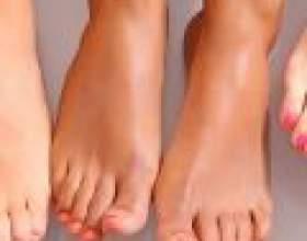 Як зменшити пітливість ніг фото
