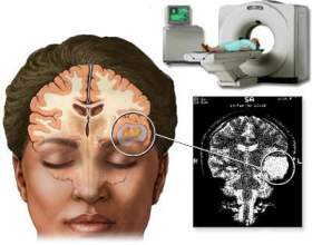 Комп'ютерна томографія головного мозку. Магнітно-резонансна томографія головного мозку фото