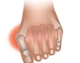 Кісточки на великих пальцях ніг - ефективні методи лікування фото