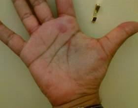 Червоні плями на руках: симптоми і лікування. Червоні плями на руках дитину фото