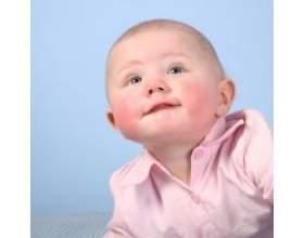 Лікування діатезу народними засобами фото