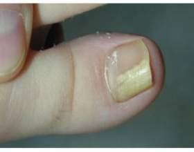 Лікування грибка на нігтях ніг фото