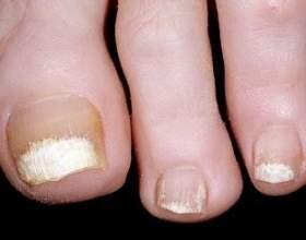 Грибкові ураження нігтів фото