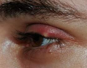Лікування ячменю: найефективніші засоби фото
