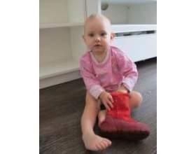 Лікування плоскостопості у дітей фото