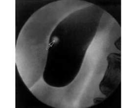 Лікування поліпа в жовчному міхурі народними засобами фото