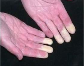 Лікування синдрому рейно народними засобами фото