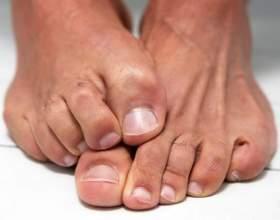 Ліки від грибка нігтів на ногах. Як і чим лікувати грибок? фото