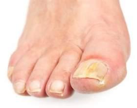 Кращі народні засоби від грибка нігтів на ногах фото