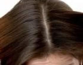 Поживна маска для волосся від лупи фото