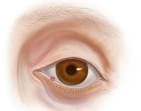 На оці ячмінь: причини і лікування фото