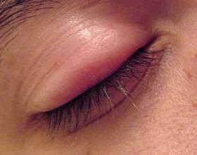 Народне лікування ячменю на оці: повернення здорового вигляду фото