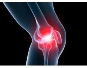 Народні методи лікування артрозу колінного суглоба фото
