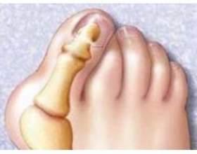 Народні методи лікування кісточки на ногах фото