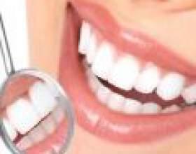 Зубний камінь - все про кам'яної небезпеки фото