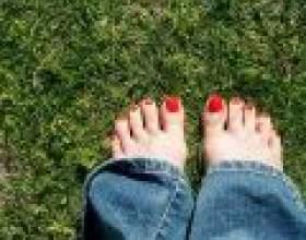 Як лікувати грибок на нігтях фото