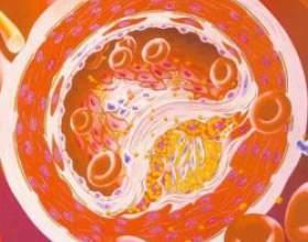 Норма вмісту холестерину в крові людини фото