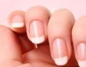 Про що розкажуть ваші нігті фото