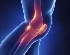 Дуже сильно болить коліно, що робити? Болить коліно при згинанні, присіданні або бігу: в чому причина? фото