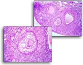 Чи небезпечна фолікулярна кіста яєчника? фото