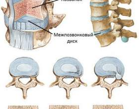 Остеохондроз - причини, симптоми, діагностика, лікування фото