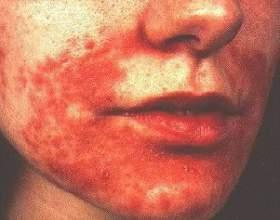 Від чого з'являються на шкірі червоні плями? фото