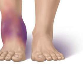 Від чого з'являються набряки ніг фото
