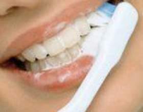 Відбілюючі зубні пасти: характеристика фото