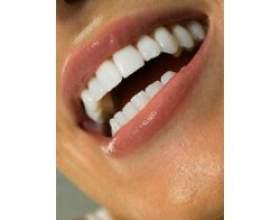 Відбілювання зубів, побічні наслідки фото