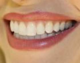 Відбілювання зубів для сліпучої усмішки фото