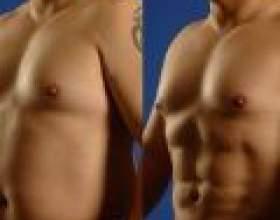 Пластична хірургія - шанс не тільки для жінок фото