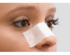 Пластична операція по формі носа фото