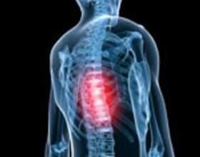 З яких причин відбувається защемлення нерва в грудному відділі фото