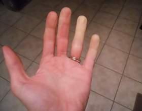 Чому німіє мізинець лівої руки? Що робити, якщо німіє рука? фото