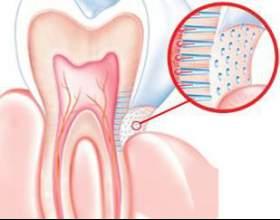 Підвищена чутливість зубів: профілактика, причини, лікування. Як зменшити чутливість зубів? фото