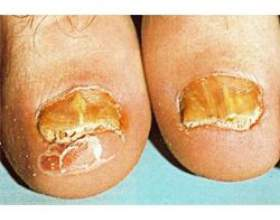 Причини захворювання нігтів фото