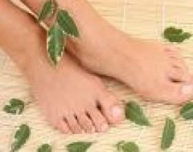 Як позбутися від шишок на пальцях ніг фото