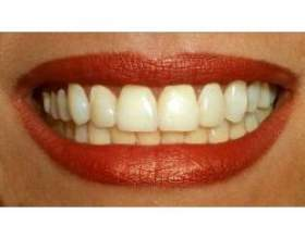 Продукти харчування, корисні для зубів фото
