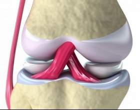 Розрив зв'язок колінного суглоба: причини, симптоми, перша допомога фото