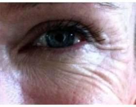 Рецепти масок від зморшок навколо очей фото