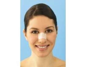 Ринопластика - операція з корекції носа фото