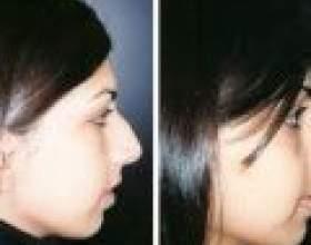 Ринопластика - можливість перевтілення фото
