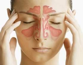 Риносинусит: симптоми, види, діагностика, лікування фото