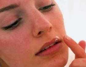 Як підібрати мазь для лікування герпесу на губах фото