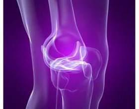 Синовит колінного суглоба: симптоми і лікування фото