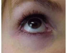 Темні кола під очима: причини фото