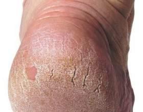 Тріщини на п'ятах: лікування, симптоми фото