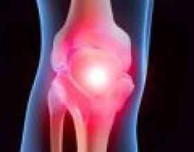 Як зміцнити колінний суглоб фото