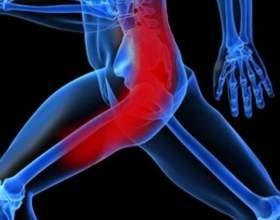 Обмеження сідничного нерва: причини, симптоми і методи лікування фото